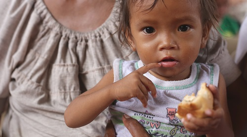 Undernourished children are more prone to COVID-19