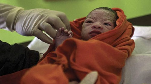 Ending Newborn Deaths: ensuring every baby survives
